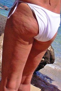 320px-Dimpled_appearance_of_cellulite