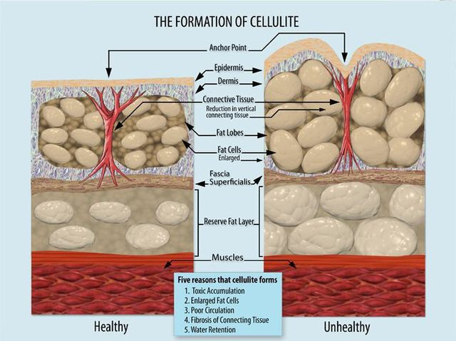 640px-Formation_of_Cellulite